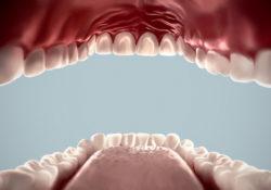 vsestoronnij uxod za polostyu rta 250x175 - Всесторонний уход за зубами и полостью рта